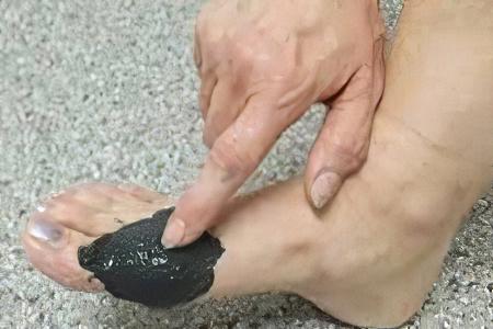 Как лечить подагрический артрит