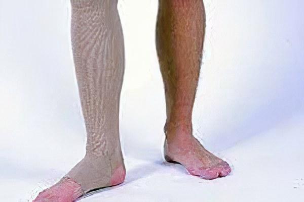 Какой врач лечит варикозное расширение вен на ногах