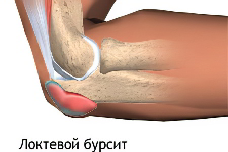 Иссечение бурсы локтевого сустава травянная мазь для суставов