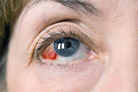 Лопнул сосуд в глазу – что делать, чем лечить? Почему лопаются ...