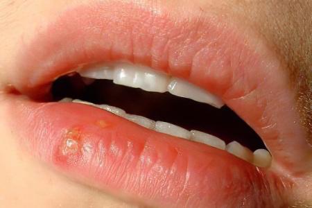 Начальная стадия рака губы