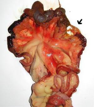 очищение тонкого кишечника от паразитов