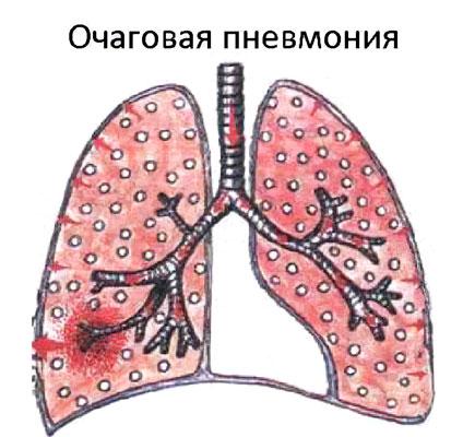 Очаговая пневмония: что это и как лечить?