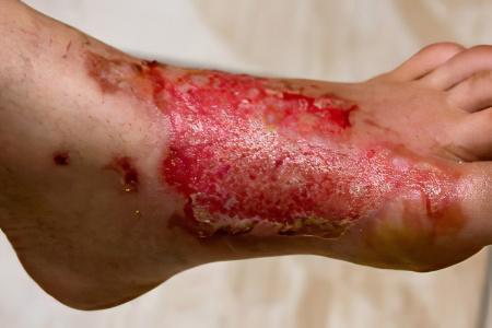 Что делать если вылил кипяток на ногу