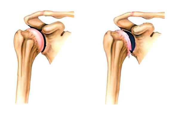 Костные выросты на плечевом суставе опухоль суставов у маленьких поросят