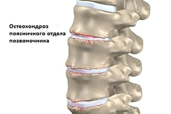 Диспластический остеохондроз пояснично-крестцового отдела позвоночника