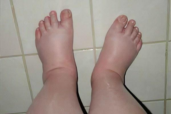 Ноги отекли во время беременности что делать