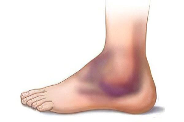 Суставы отеки 30 недель видео рассказ как врач меняет коленный сустав
