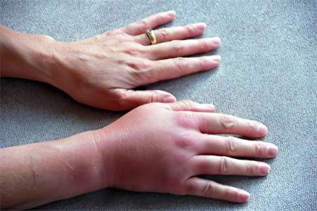 Опухание суставов кисти лечение мазь из прополиса в домашних условиях от боли в суставах
