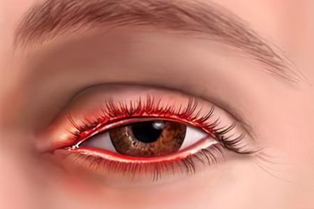 Начальный симптом вирусный гепатит