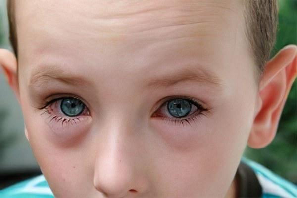 Глаза опухшие у ребенка