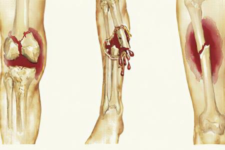 перелом ноги выше колена со смещением