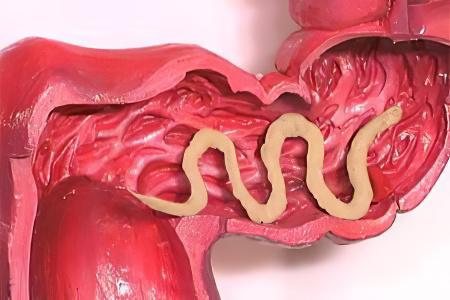 какие паразиты живут в мозге человека