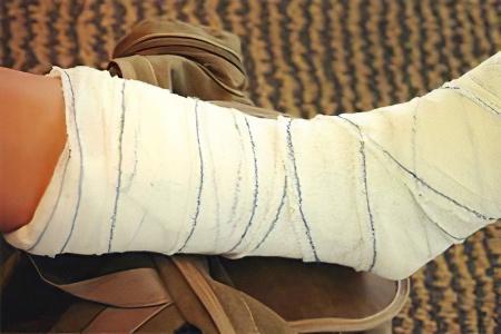 Лечение перелома малой берцовой кости