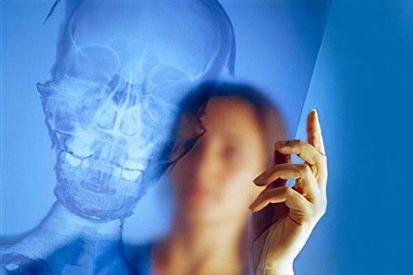Лечение вдавленных переломов черепа