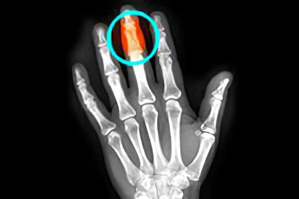 Перелом фаланги пальца