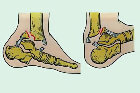 Перелом голеностопного сустава сколько мумие после операций на суставах