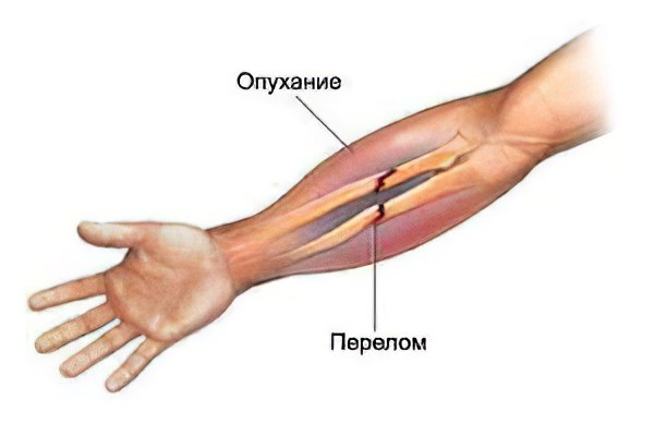 Симптомы перелома руки в плечевом суставе магнитотерапия и парафинолечение для суставов