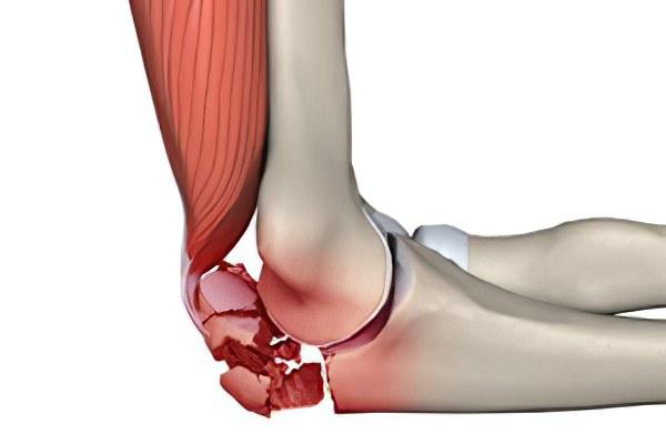 Разрабатываем локтевой сустав видео балезин сустав ног руки