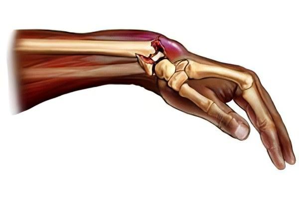 Осложнения после перелома лучевой кости