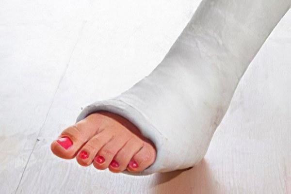перелом ноги без гипса