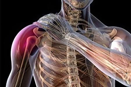 Перелом большого бугорка плечевой кости