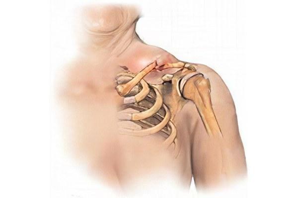 Перелом плечевой кости со смещением