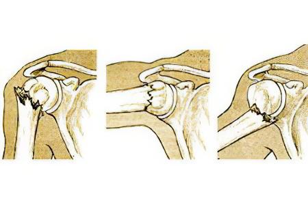 Перелом хирургической шейки плеча