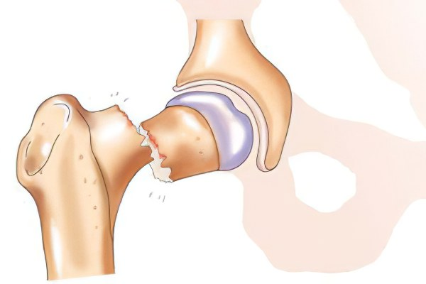 Сломан тазобедренный сустав новые средства для лечение суставов