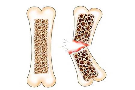 Как лечить остеопороз и перелом позвонков