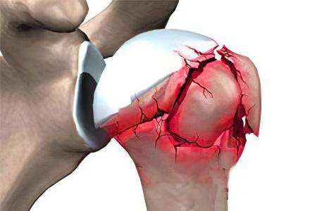 Перелом головки плечевого сустава лечение исплазия тазобедреного сустава у ла