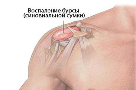 Бурсит плечевого сустава – причины, симптомы и лечение