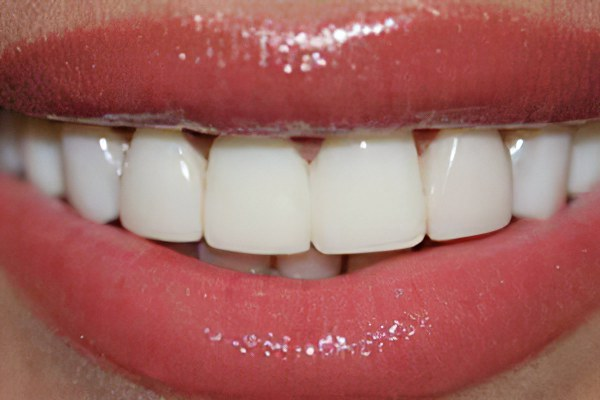Плюсы виниров на зубах