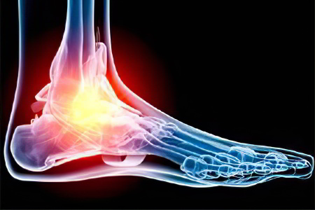 Изображение - Болят коленные и плечевые суставы pochemu-bolyat-systavi-nog56587