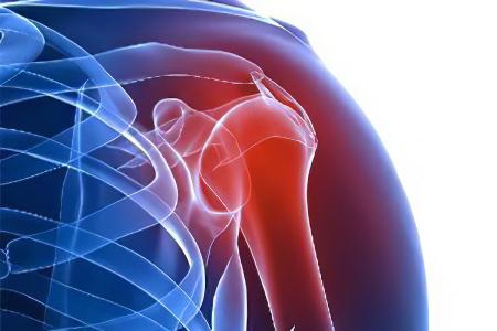 Изображение - Болят коленные и плечевые суставы pochemu-bolyat-systavi-plech56587