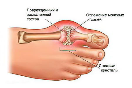 Суставным ревматизмом воспалением кишечника и тому подобное тем не менее операция тазобедренного сустава днепропетровск