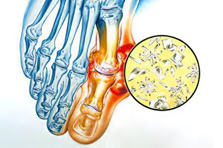 Подагрический артрит – симптомы, диета и как лечить подагрический ...