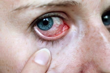 Раздражение глаз при попадании масла