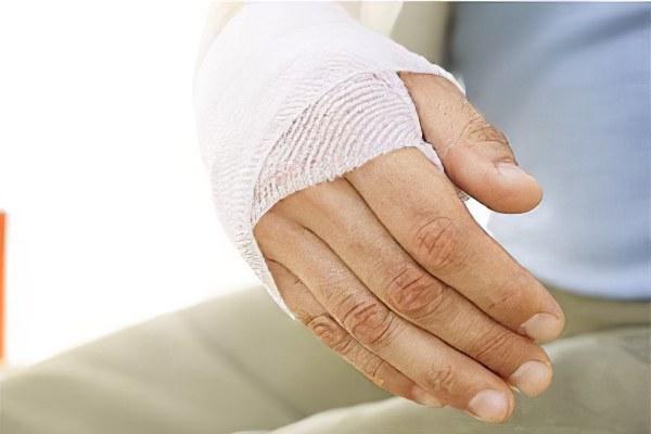 Последствия перелома руки