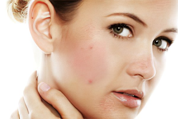 частые аллергии на лице