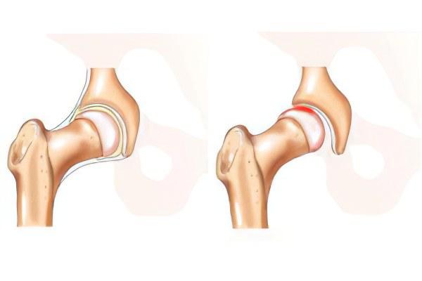 Смещение тазобедренного сустава у взрослых киста бейкера коленного сустава форум