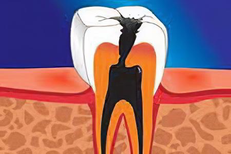 Причины кисты зуба