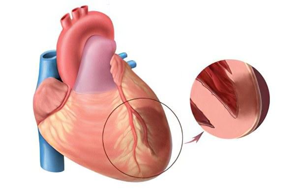 С чего бывает обширный инфаркт