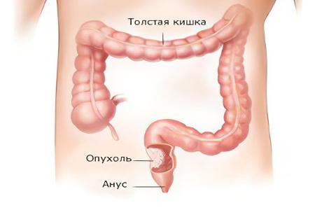Рак кишечника – признаки, симптомы, стадии и лечение колоректального рака