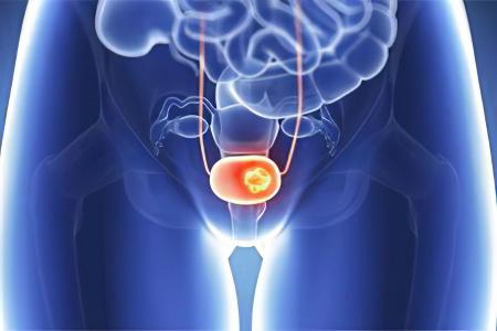 Причины рака мочевого пузыря