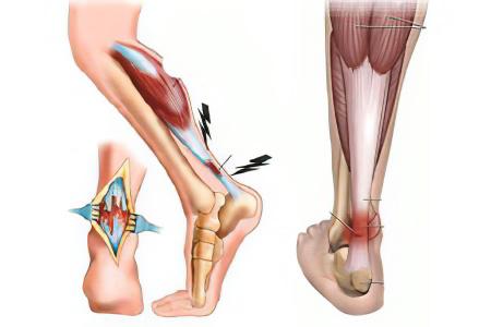 Тендовагинит сухожилия голеностопного сустава стеноз коленного сустава