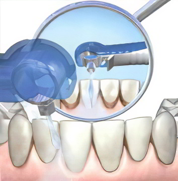 Меры профилактики зубов