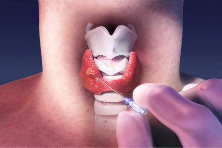 какова вероятность полного выздоровления от фоликулярной опухоли щитовидной железы