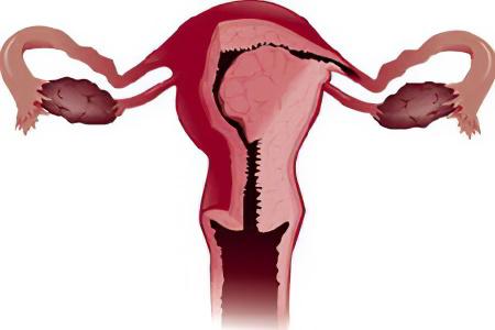 Общая информация, стадии рак эндометрия, рак эндометрия лечение, лечение рака эндометрия в зависимости