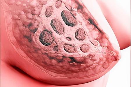 Секс как метод профилактики рака молочной железы фото 747-541